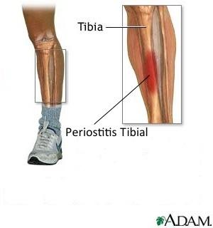 Tratamientos para la periostitis tibial en corredores